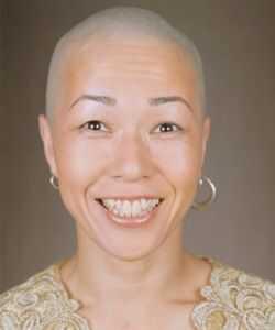 Flip Chemo gubitak kose na glavi