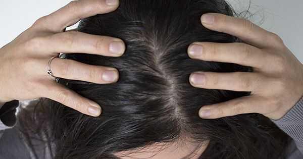 Veroorzaakt teveel shampoo een vettere hoofdhuid?