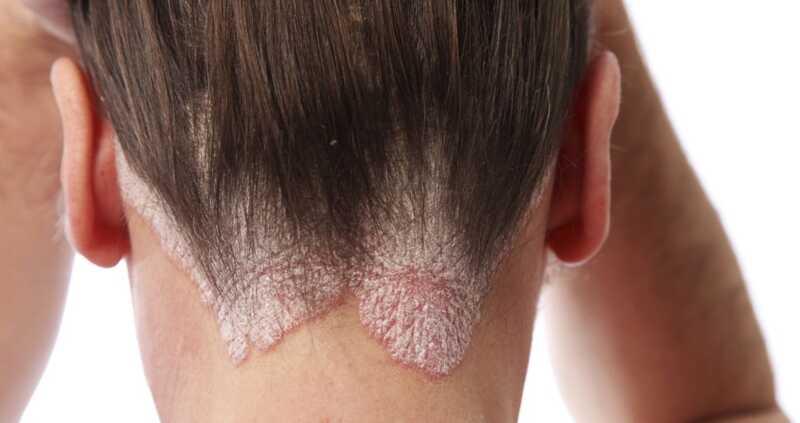 Kaip pereiti prie savo galvos odos būklės