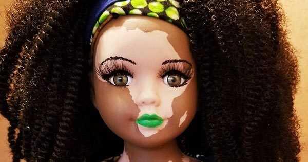 Els ninots de vitiligo i albí estan canviant la cara de la bellesa