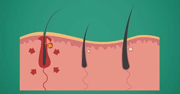 Trhologija: Studija kose i glave