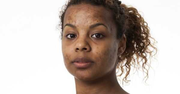 9 хипоалергични шампони за чувствителна кожа
