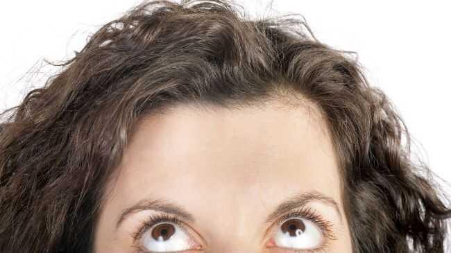 Nowa chirurgia plastyczna, którą kobiety robią na swoich hairlines